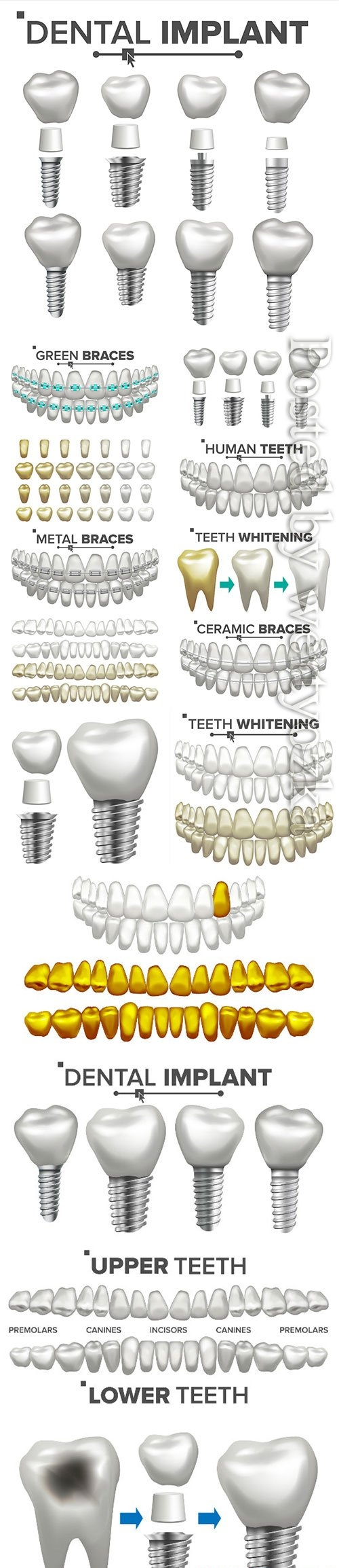Dental implant illustration vector set